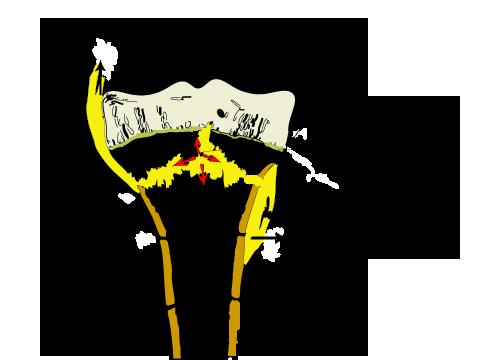 Acute Pyogenic Osteomyelitis